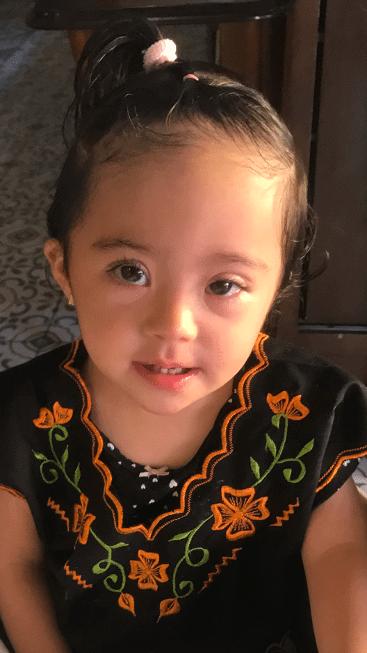 Trisomy 21 Ana