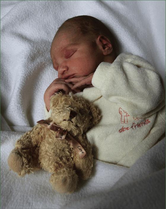 brain-injury-microcephaly-baby-tim